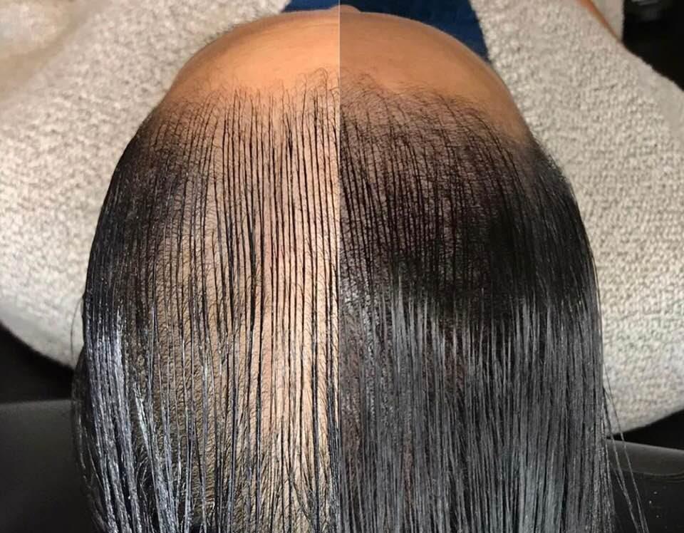micro scalp pigmentation near me
