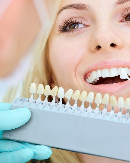 5-things-about-teeth-whitening
